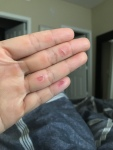 Blisters from Rowing